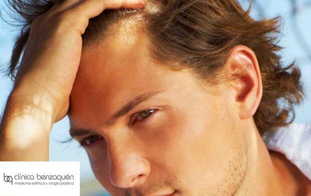 Mesoterapia contra la caída del pelo