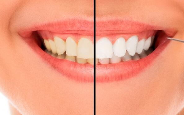 Blanqueamiento dental combinado con luz fría y férulas personalizadas