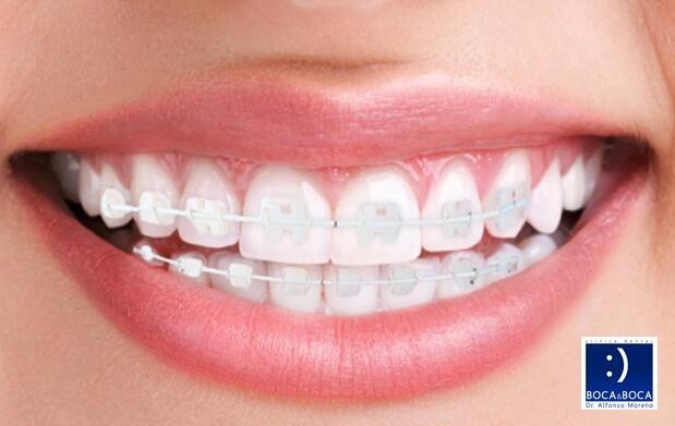 Ortodoncia en arcada superior e inferior con brackets metálicos por 299 €, de zafiro por 599 €