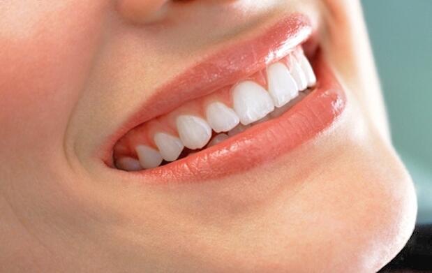 Limpieza dental completa por 9 euros